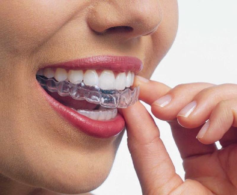 Хрустят зубы при брекетах