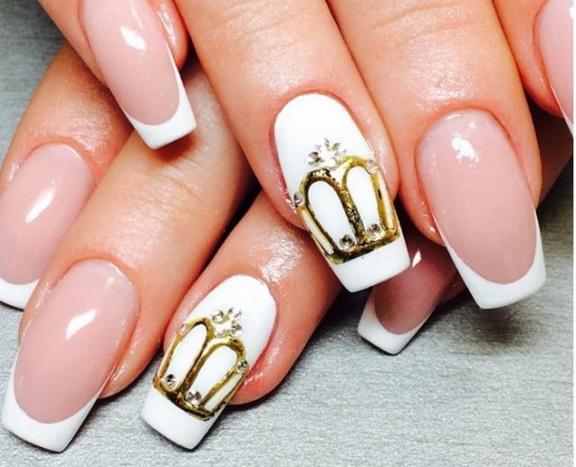 Корона литье на ногтях