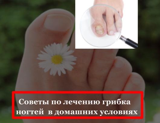 Ногтевой грибок лечение народные рецепты