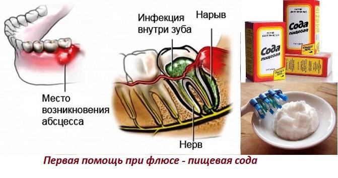 Флюс зубной как лечить в домашних условиях