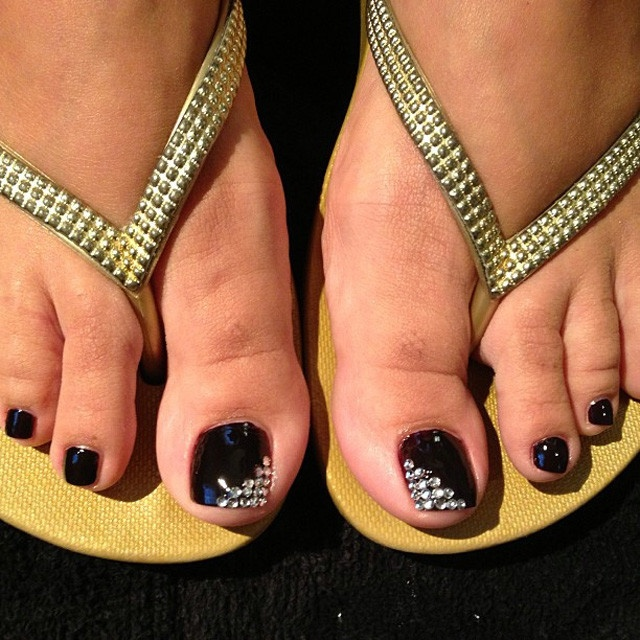 Черные ногти на ногах