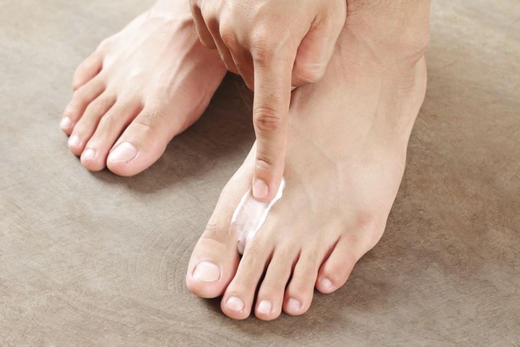 Грибок ногтя на руке лечение